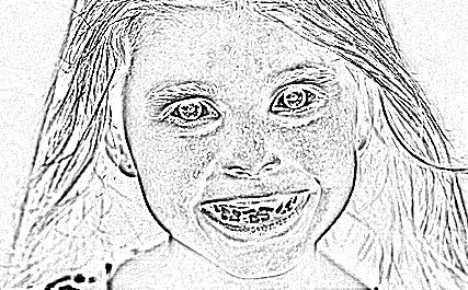 кривые зубы у детей. фото
