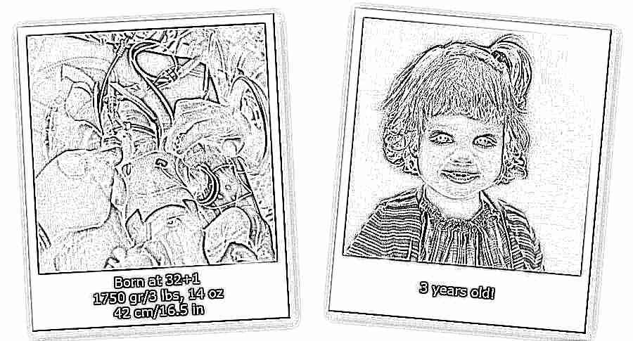 недоношенный ребенок фото родился