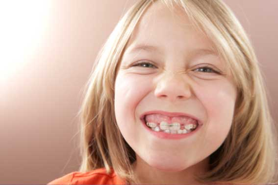 Фото детей с растущими зубами 19