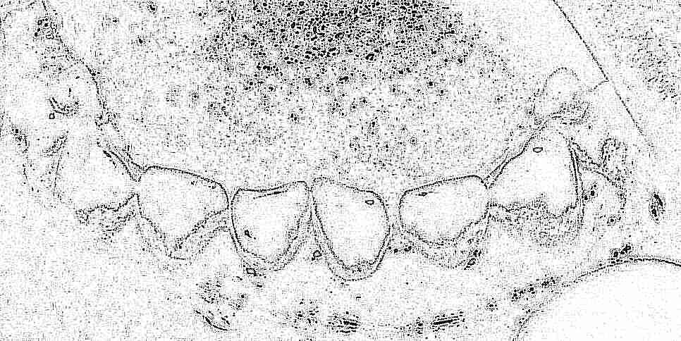 Налет на зубах черный: причины и 66