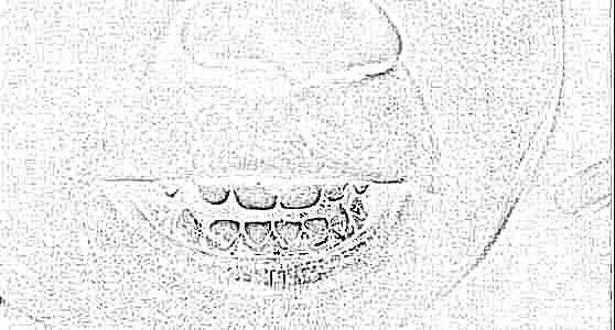 Налет на зубах черный: причины и 54