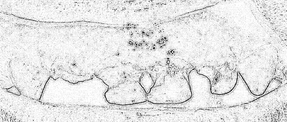Серебрение молочных зубов у детей Отзывы покупателей 68