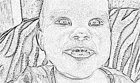 Преимущества и недостатки серебрения зубов у детей