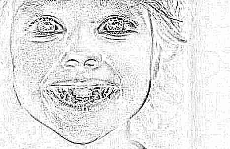 К чему сниться если вырвали зуб