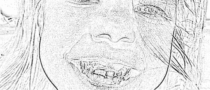 Ангина или орви фото у детей