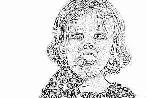 У ребенка шишка на десне над зубом