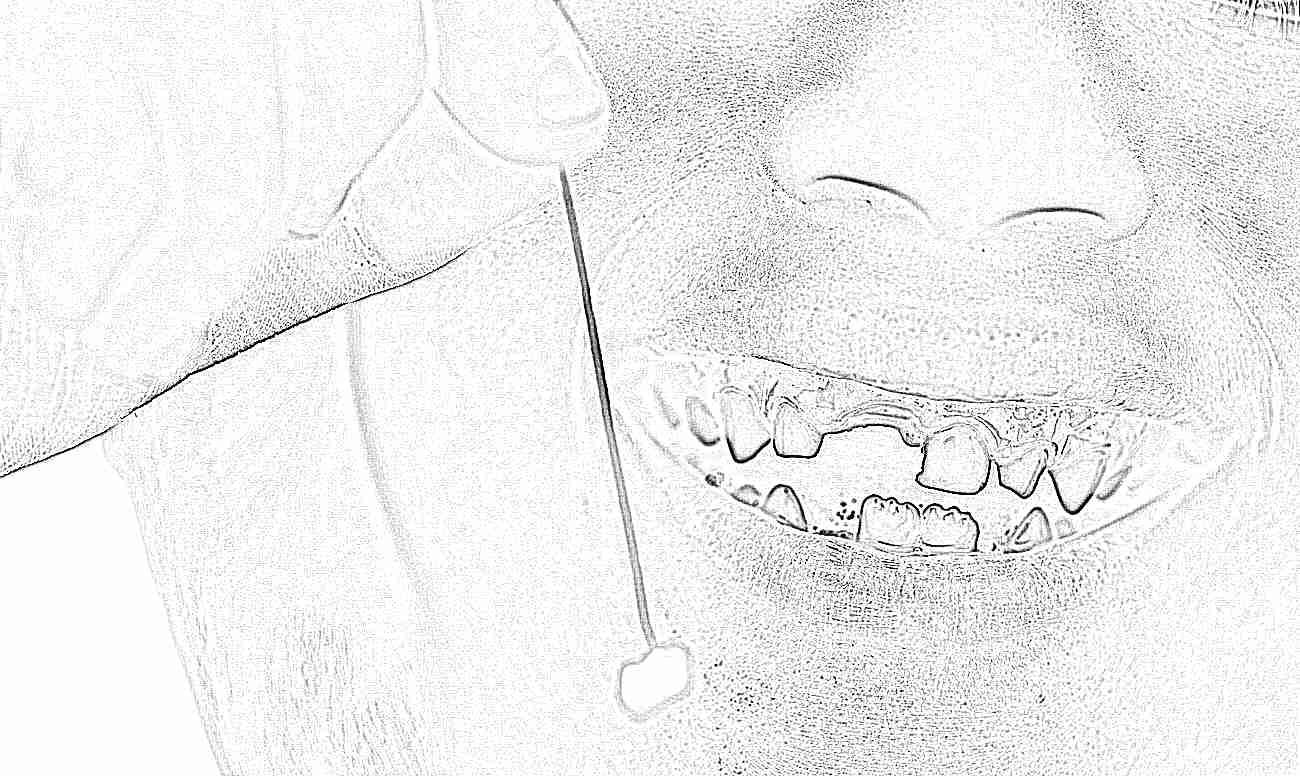 как выглядит молочный зуб фото