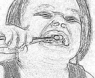 Отбеливание зубов в паттайе отзывы