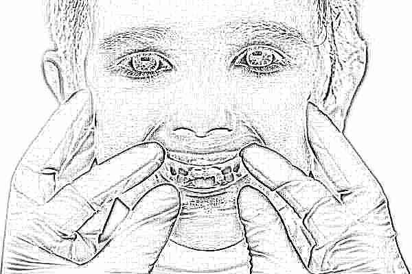 У ребенка болит зуб: как снять зубную боль, чем