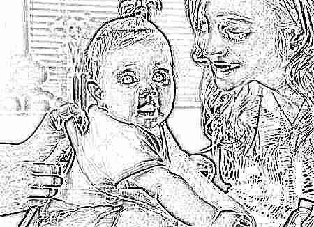 Дефект межпредсердной перегородки у детей операция