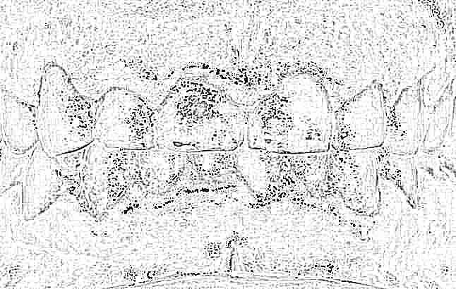 Анестезия при лечении зубов у