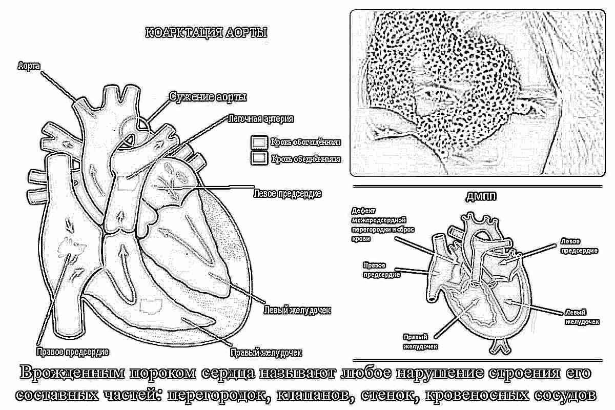 Симптомы и лечение врожденного порока сердца у новорожденных