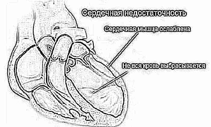 признаки сердечной недостаточности у детей и взрослых