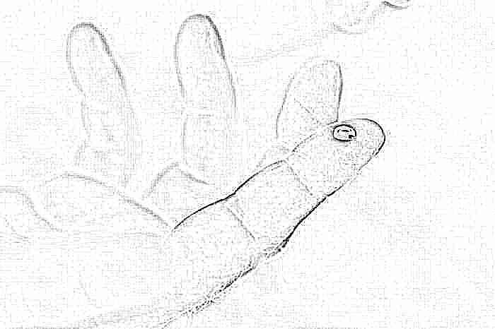 у ребенка повышенное содержание эритроцитов в крови - фото 10