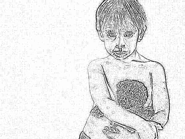 Можно ли второй раз заболеть ветрянкой ребенку. Может ли ребёнок заболеть ветрянкой второй раз? Рассказывает педиатр