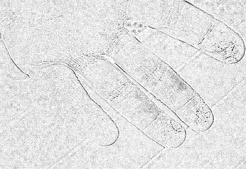 Почему у ребенка облазит кожа на пальчиках