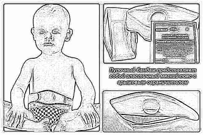 Как заклеить пупочную грыжу пластырем у новорожденного