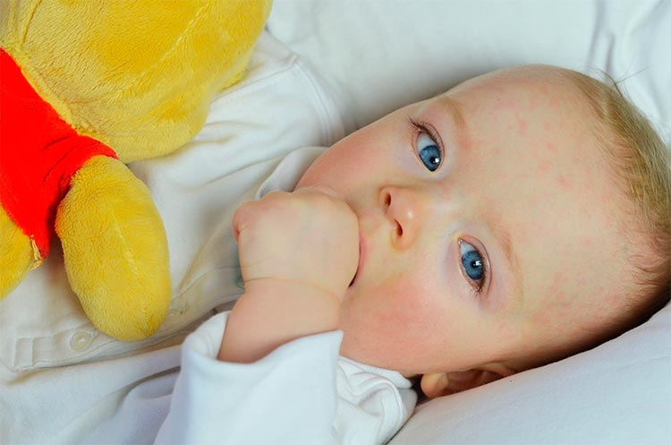 Аллергический дерматит у ребенка чем лечить в домашних условиях и какую диету соблюдать