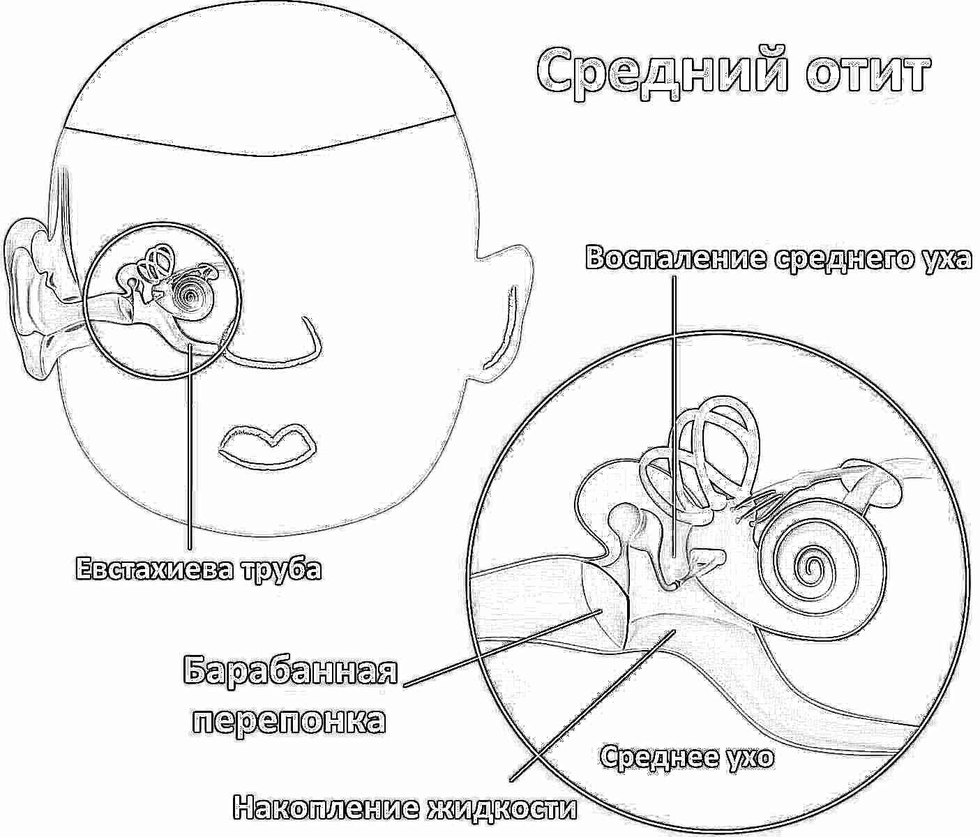 Болит в ухо попала вода, что делать? » Домашняя копилка 21