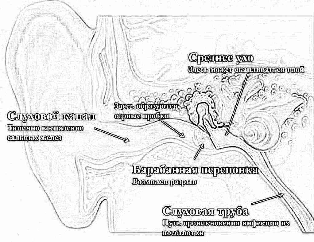 Попала вода в ухо болит сильно