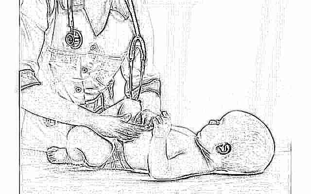 Дисплазия тазобедренных суставов для врачей обезболивающее для коленных суставов