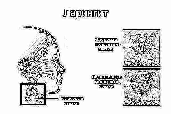 devushki-na-more-seks