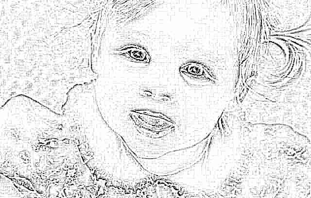 У ребенка мешки под глазами причины