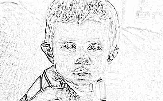 У ребенка синяки и круги под глазами что говорит Комаровский