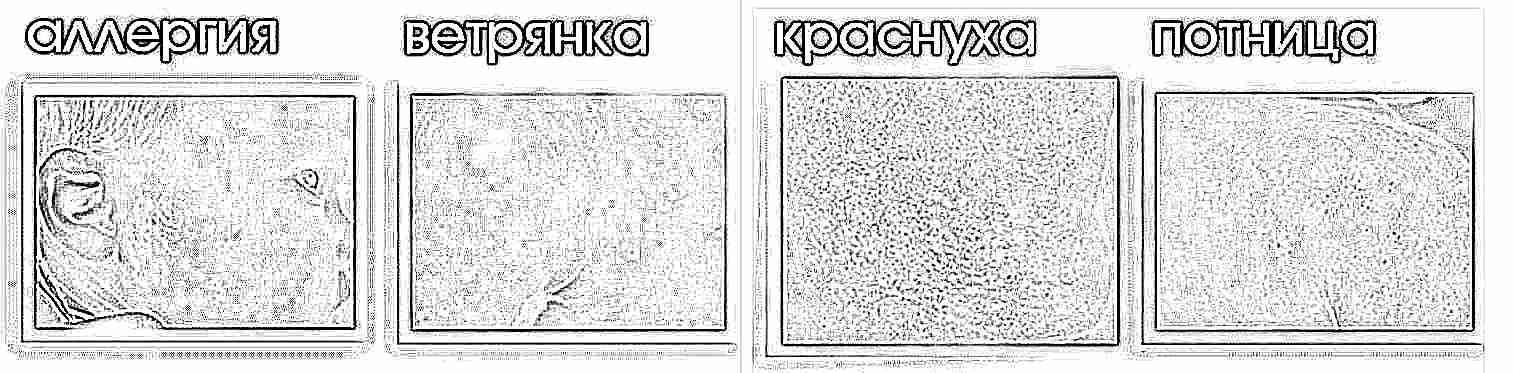 Сыпь на теле у ребенка фото с