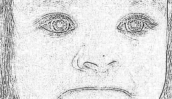 конъюнктивит фото у ребёнка