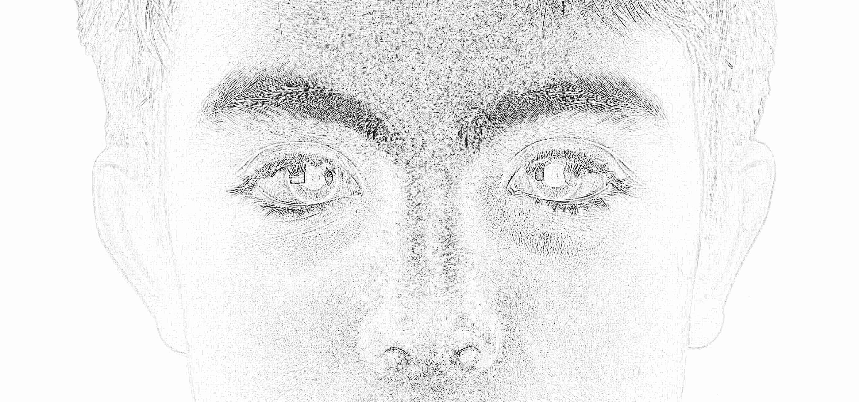 Конъюнктивит у детей: причины и лечение