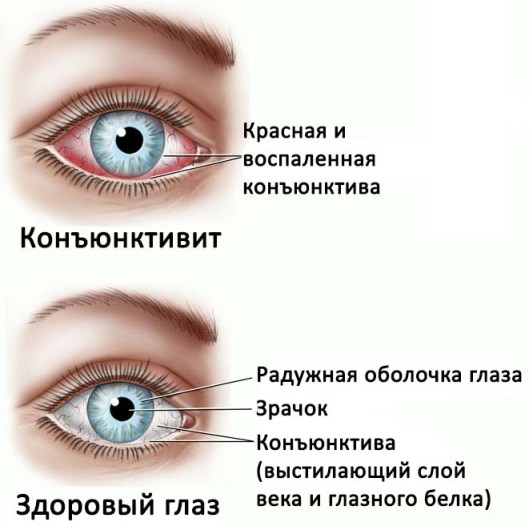 Формы глаз у ребенка фото