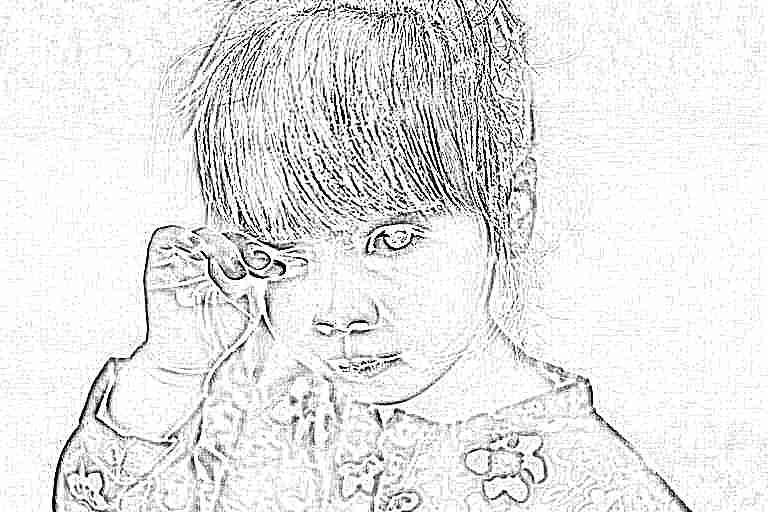 Лечение конъюнктивита у детей в домашних условиях: чем и как лечить ребенка