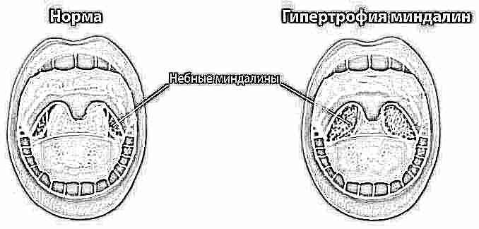 Белый налет на языке и субфебрильная температура