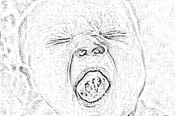 Грибок на миндалинах у ребенка