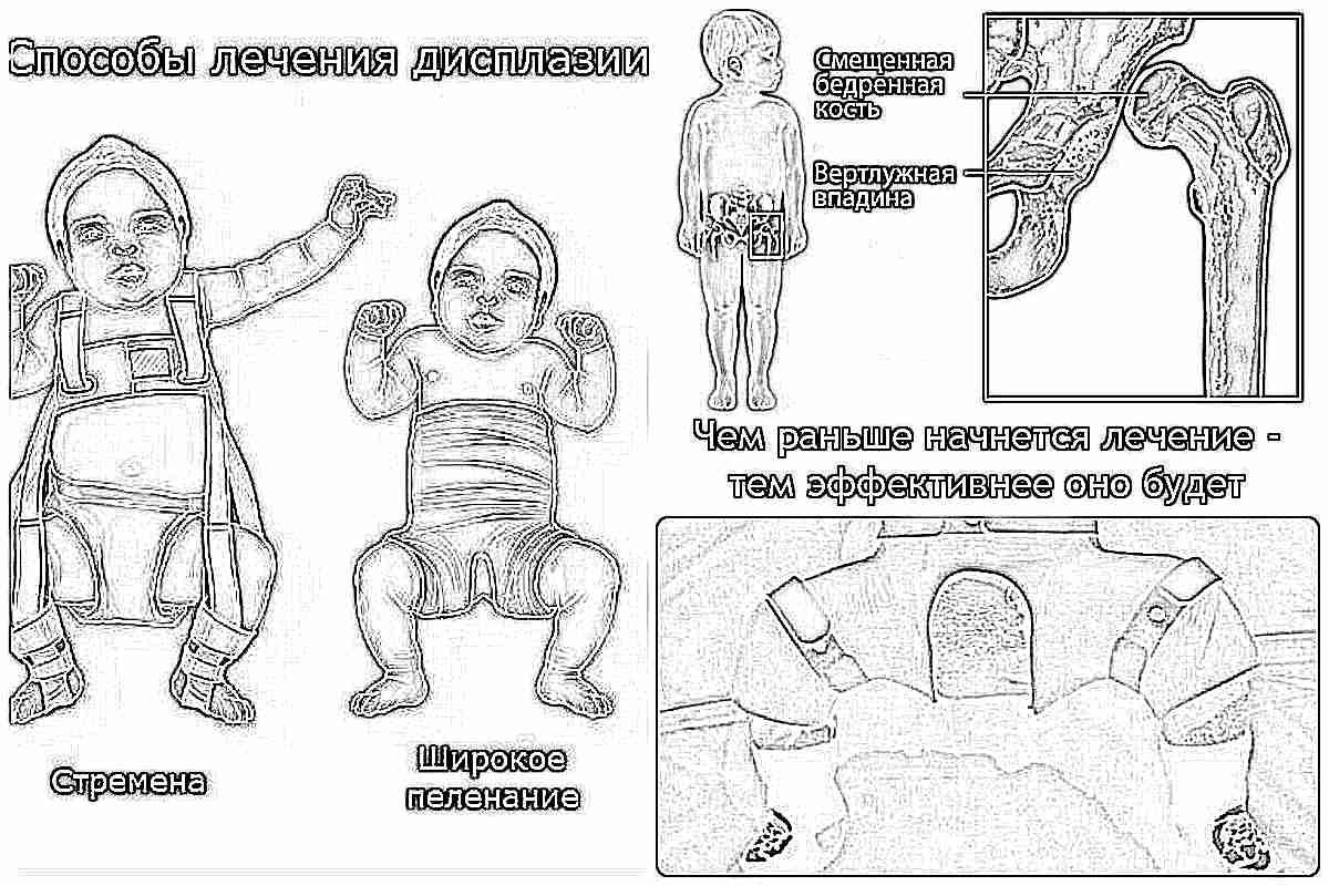 Дисплазия тазобедренных суставов симптомы малышей сустав экстракт ивы