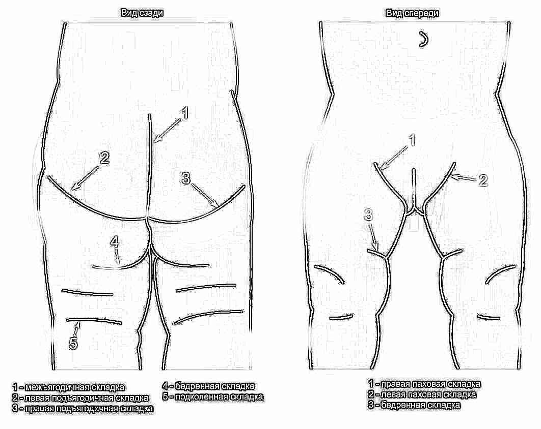 Дисплазия тазобедренного сустава в картинках лфк при остеоартрозе тазобедренного сустава