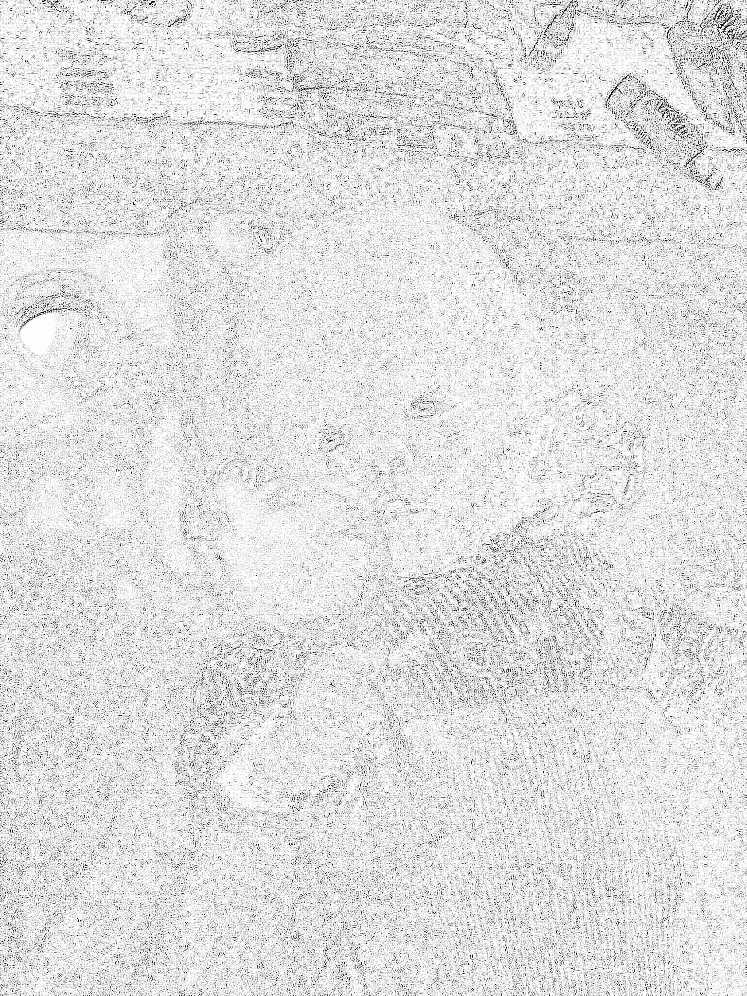 Малыш на приеме у невролога. Форма и размер черепа