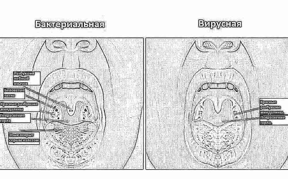 Почему белый налет на языке? Причины у взрослых, ребенка