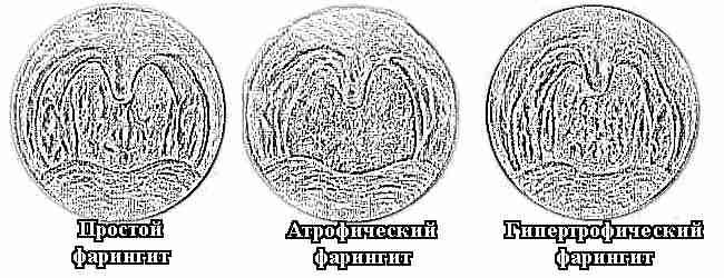 фото наросты в горле