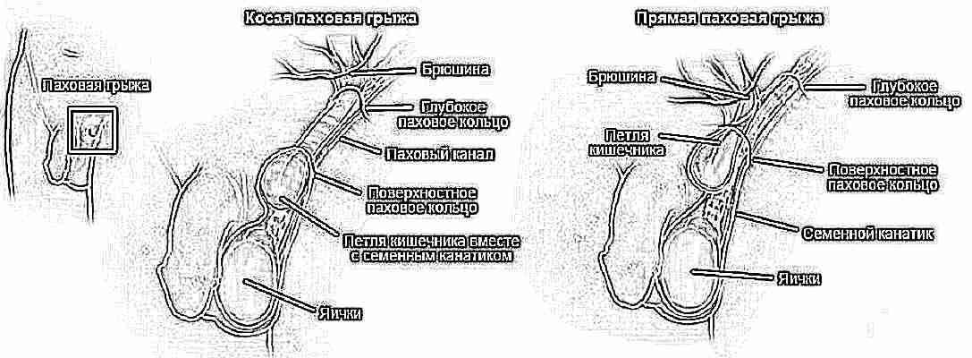 Молочница при беременности: чем лечить, симптомы