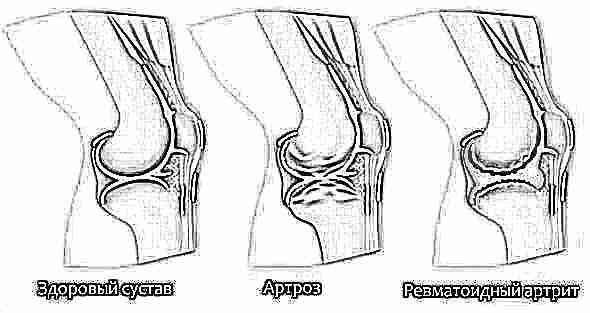 Реактивный артрит коленного сустава у детей лечение бандаж колено сустав