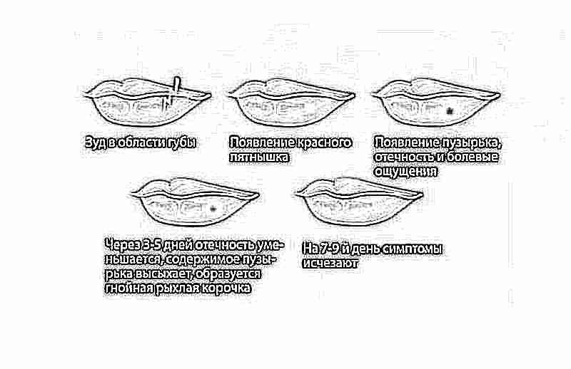 бородавки у детей на ногах фото и лечение
