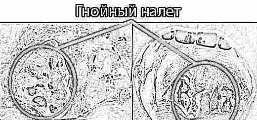 ангина симптомы у детей фото