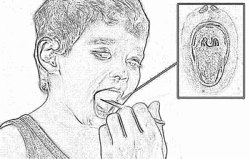 Инфекция дифтерии у детей (лечение и профилактика)