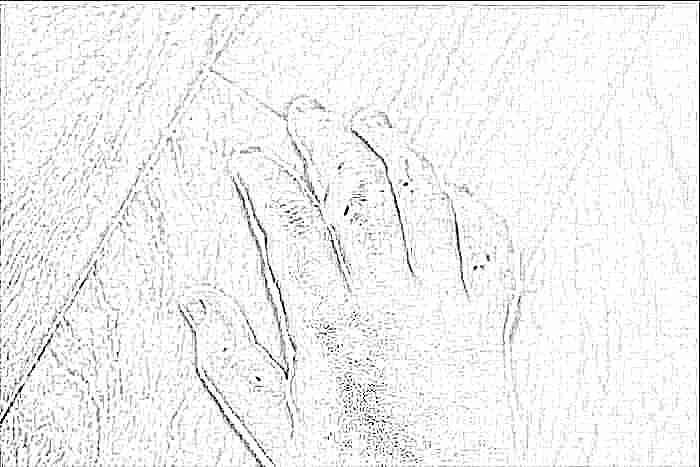 Кожная сыпь у детей. разбираем причины. (с фото)