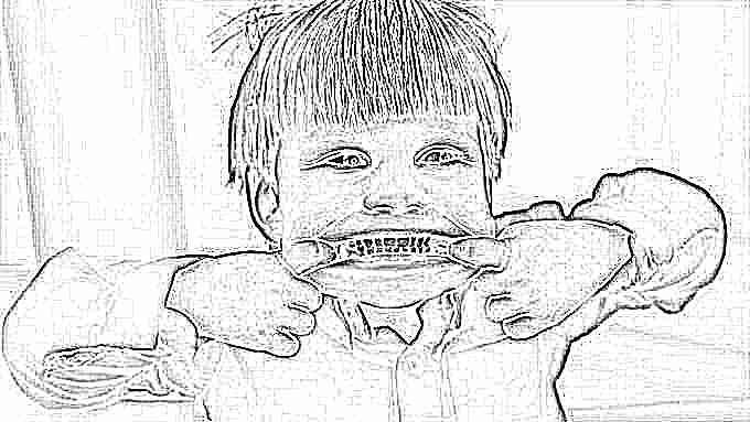 Нижняя челюсть вперд неправильный прикус и его исправление