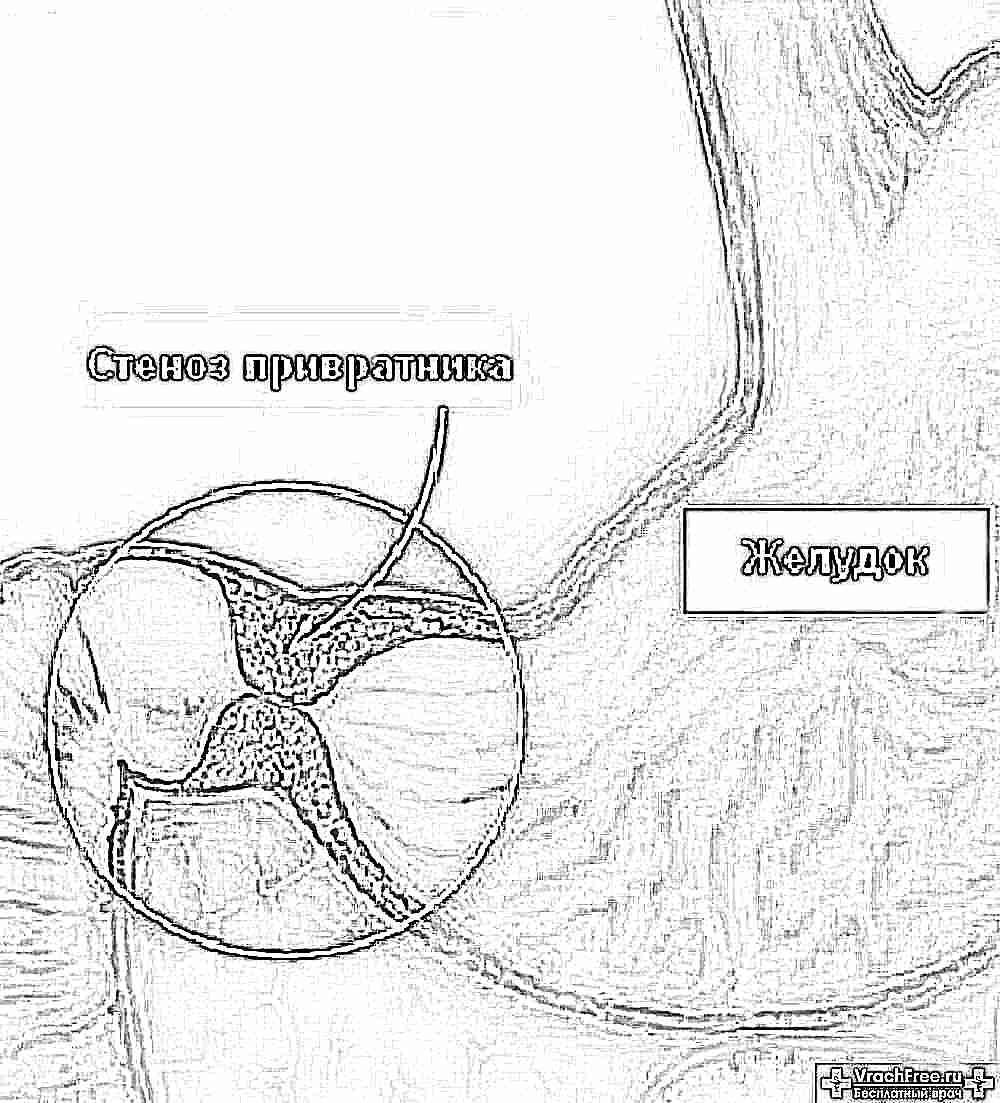Пилоростеноз у новорожденных: симптомы, диагностика и лечение детей, необходимость операции, врожденная форма
