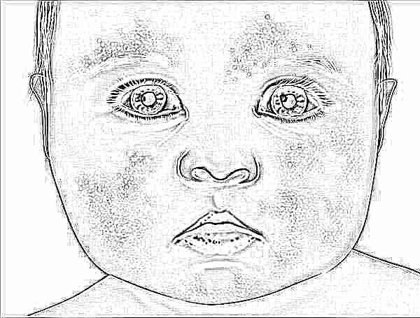 Мазь при пиодермии у детей