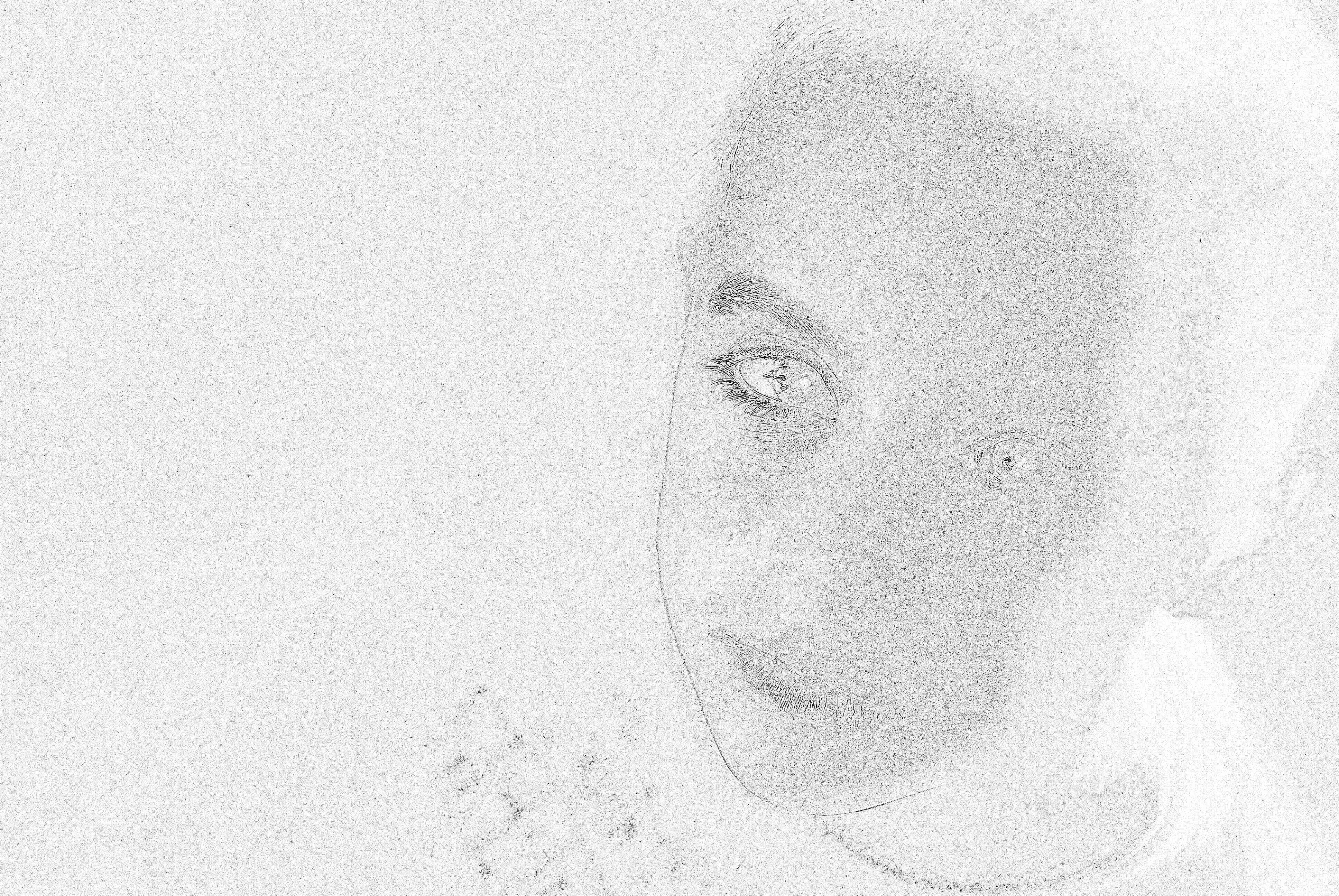 Как лечить сходящееся косоглазие у детей?